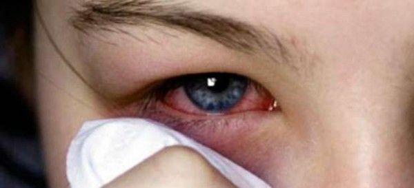 Alergias oculares – Aprende a evitarlas y a tratarlas