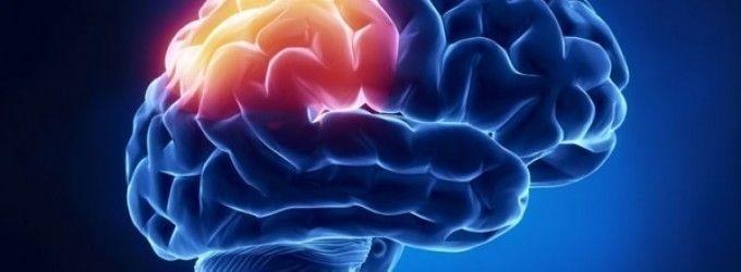 Ictus, accidente cerebrovascular,  apoplejía…