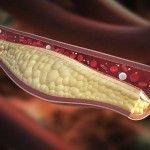 El colesterol es un indicador fiable de la salud cardiovascular