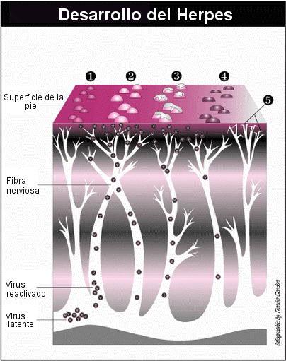 Desarrollo del herpes zóster