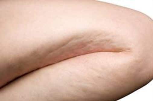 Tips para adelgazar piernas y caderas