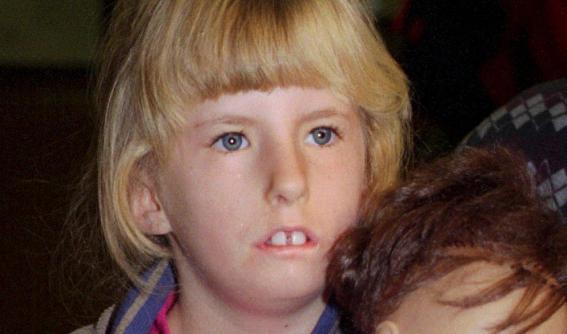 Síndrome de Moebius: La vida sin sonrisas