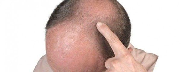 La calvicie y la testosterona
