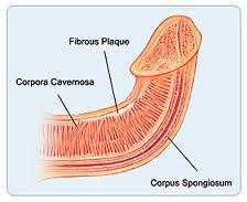 Síndrome de Peyronie