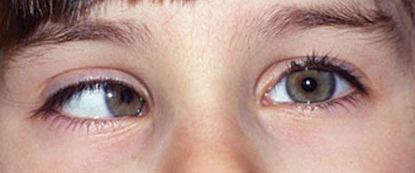Estrabismo infantil u ojo vago en niños