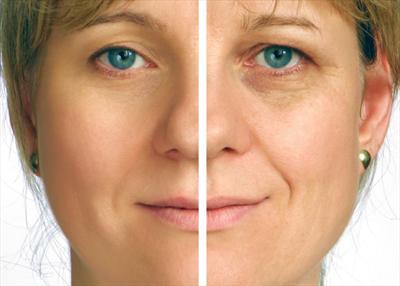Endopeel o retensado cutáneo – ¿Qué es?