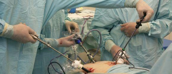 Histerectomía mediante laparoscopia