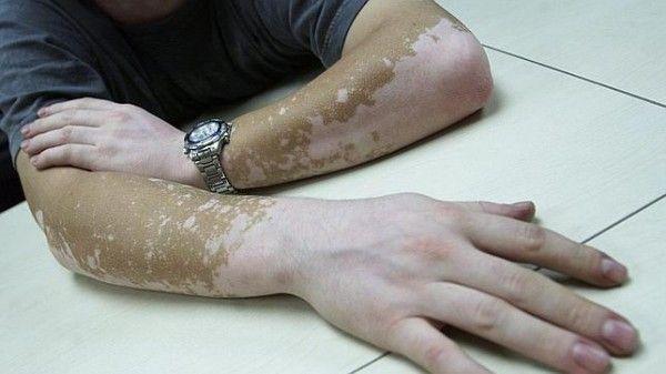 Leucodermia o vitíligo – Un problema benigno que asusta