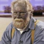 Argiria – Una enfermedad peculiar