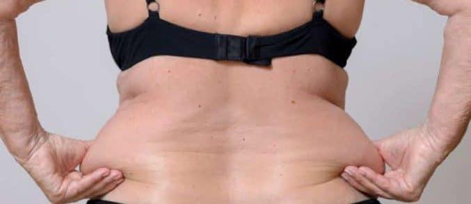 Reducir grasa acumulada o grasa localizada