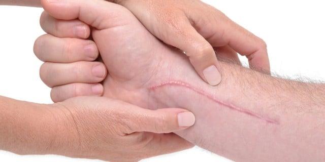Queloides – o cicatrización queloide