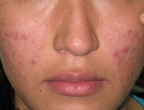 El acné o espinillas – Odioso compañero de la juventud