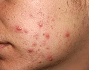 Ganoderma contra el acné