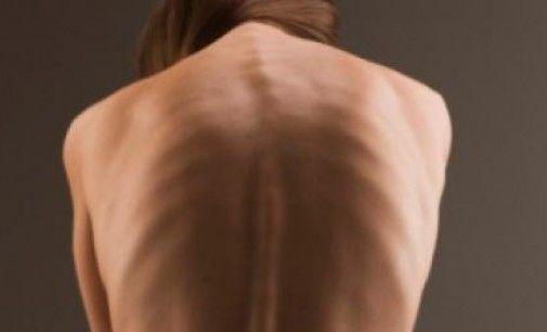 Subir de peso sin descuidar la salud