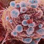 Tipo de cáncer según dónde se inicia