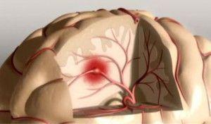 Ictus cerebral