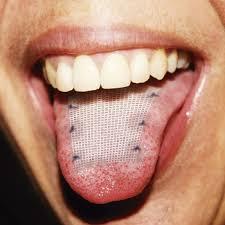 Malla lingual