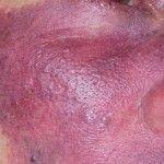 Síndrome de Sturge-Weber