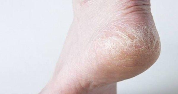 Urea – Ingrediente altamente hidratante de cremas