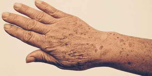 El ácido kójico – Una ayuda para eliminar manchas en la piel