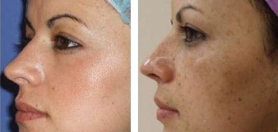 Glicólico, Hialurónico… El ácido glicólico es la estrella de la cosmética