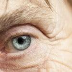 Cataratas oculares