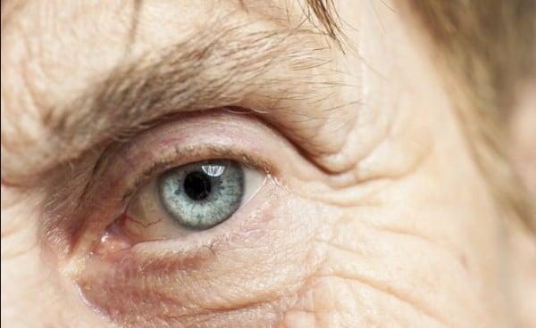 Cataratas – Tratamientos, síntomas e información