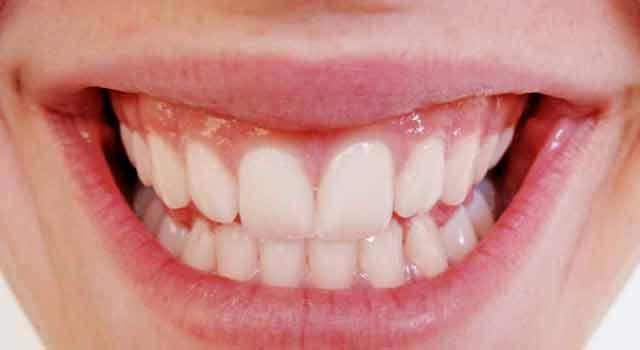 Gingivitis – Un problema dental que puede tener consecuencias