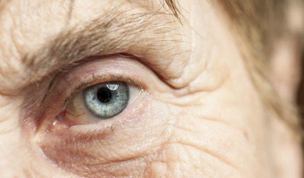 Degeneración macular – Uno de los principales causantes de ceguera