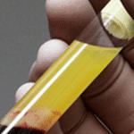 PRP o plasma rico en plaquetas