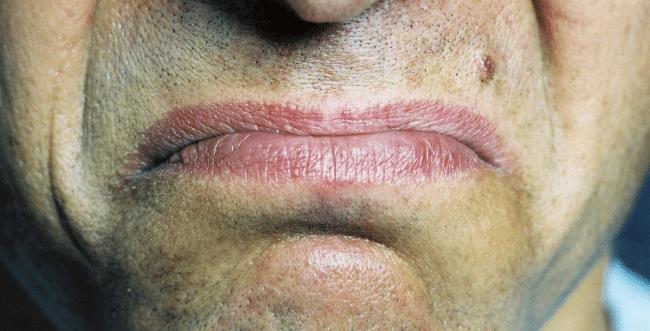 Sabor metálico en la boca (disgeusia) – Causas y síntomas