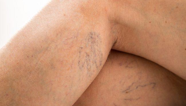 Arañas vasculares y venas varicosas – Qué son y cuáles son sus tratamientos