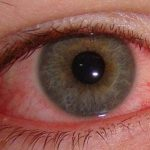 Conjuntivitis. Inflamación de la conjuntiva