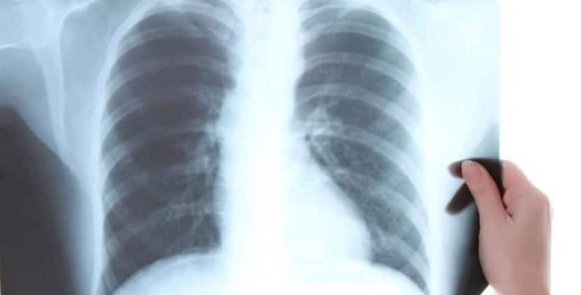 ERA4TB – European régimen Accelerator for Tuberculosis