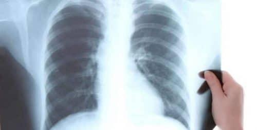 ERA4TB – European régimen Accelerator for Tuberculosis